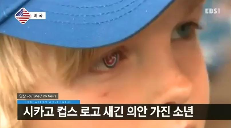 <세계의 교육> 소아암 소년의 특별한 눈