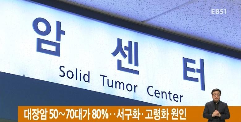 대장암 50∼70대가 80%‥서구화·고령화 원인