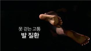 명의, 못 걷는 고통 - 발 질환