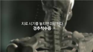 명의, 치료시기를 놓치면 마비된다 - 경추척수증