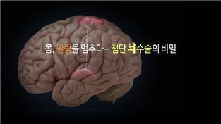 명의, 몸, 떨림을 멈추다 - 첨단 뇌수술의 비밀