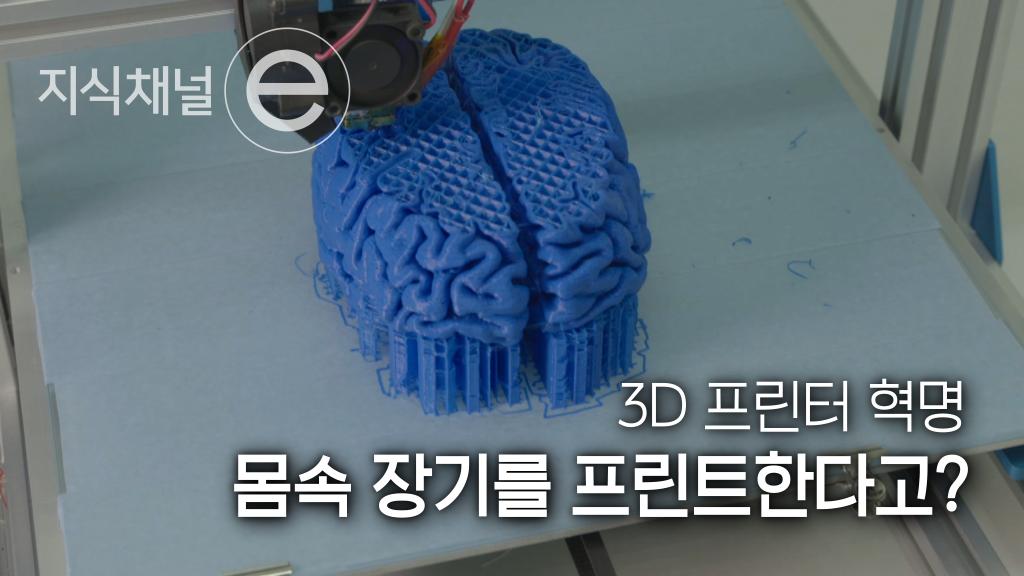 3D 프린터로 만든 인공장기