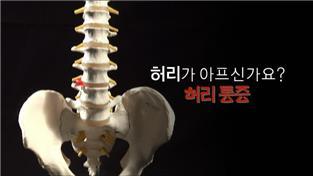 명의, 허리가 아프신가요? 허리통증