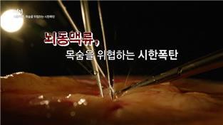 명의, 뇌동맥류, 목숨을 위협하는 시한폭탄