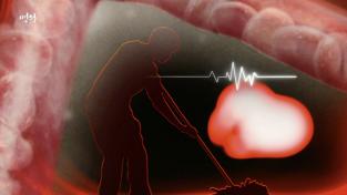명의, 건강 적색경보 고지혈증과 동맥경화